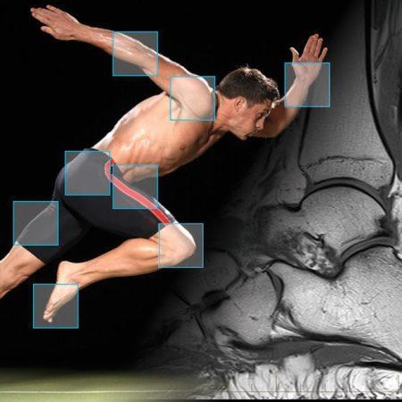 mri-musculoskeletal-imaging